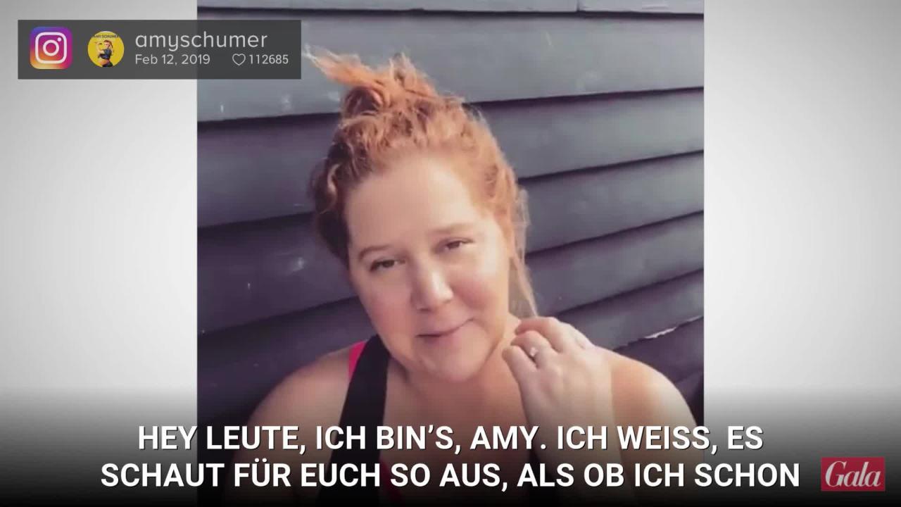 Amy Schumer: So stolz ist sie auf ihren After-Baby-Body